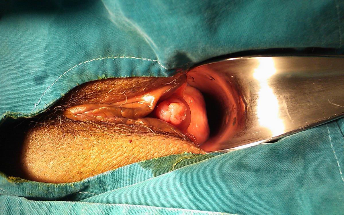Κονδύλωμα ουρήθρας σε μεσήλικη γυναίκα. Εκτομή και ηλεκτροκαυτηριασμός