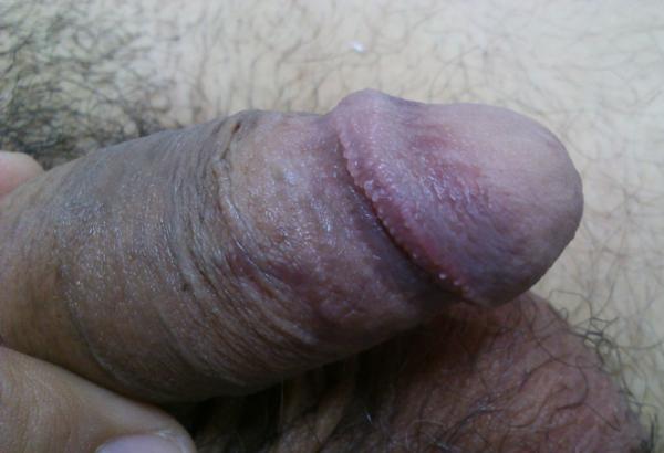 Μαργαριταροειδείς βλατίδες του πέους